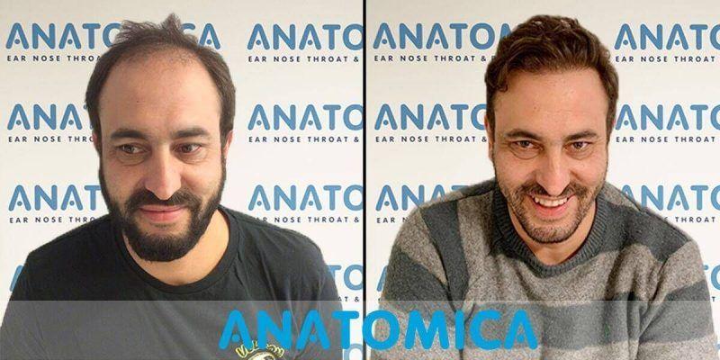 hair-transplantation-before-after-1
