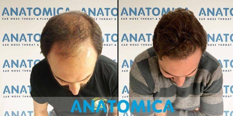 hair-transplantation-before-after-2