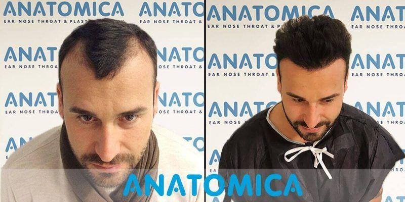 hair-transplantation-before-after-3