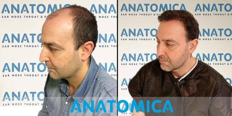 hair-transplantation-before-after-5