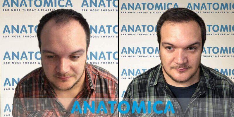 hair-transplantation-before-after-7